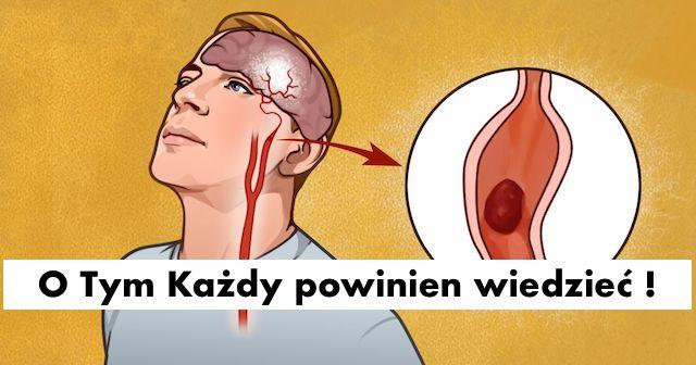 7  objawów ostrzegawczych udaru, o których każdy powinien wiedzieć