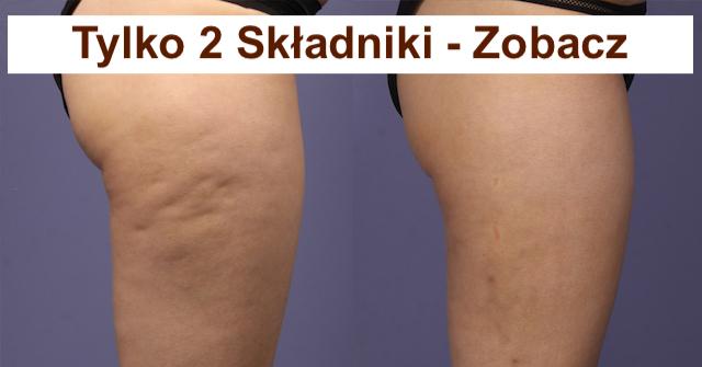 Skuteczne i naturalne leczenie cellulitu –  Tylko 2 składniki