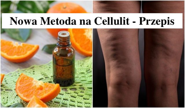 Olejek eteryczny z mandarynki na pozbycie się cellulitu